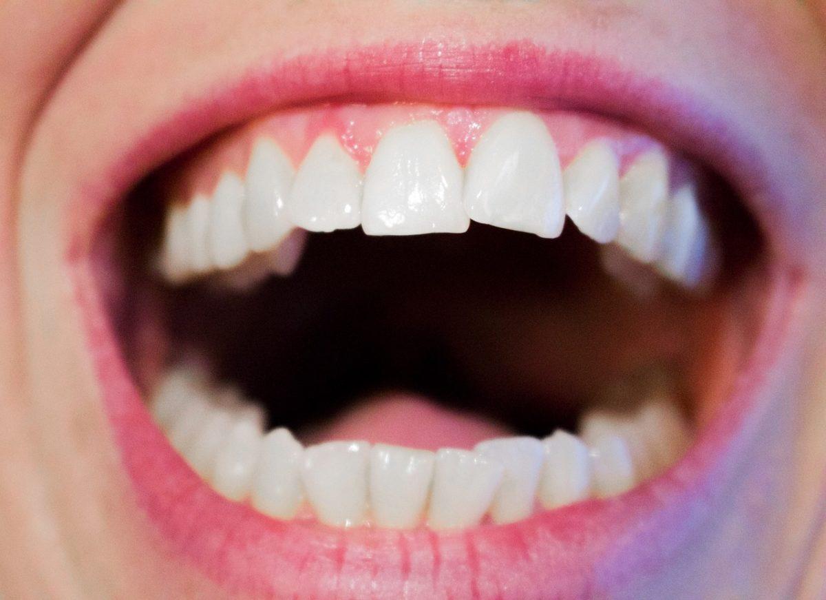 Obecna technologia używana w salonach stomatologii estetycznej zdoła sprawić, że odbierzemy śliczny uśmieszek.